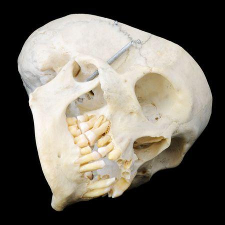 Sideways view of real human skull photo
