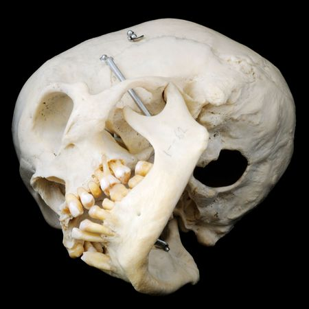 remorse: Underside of real human skull Stock Photo