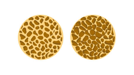 bone spongy structure, normal and with osteoporosis