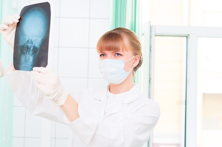 Young woman doctor looks at an X-ray of skull photo