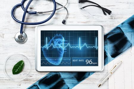 Medical diagnostics in modern hospital. Tablet computer with medical application interface on screen. Top view x-ray images, stethoscope and cardiogram on wooden desk. Digital technology in clinic.