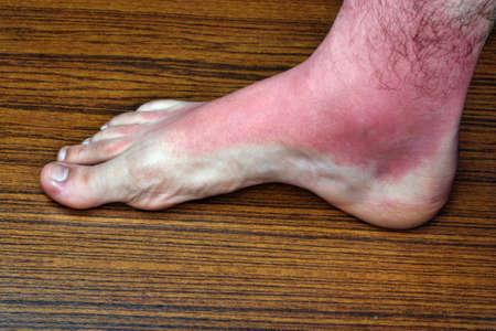 Strong sunburn