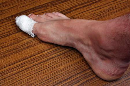 chipped: Bandaged toe