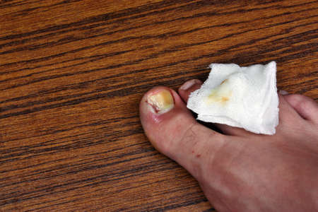 toenail: Ingrown toenail with dressing