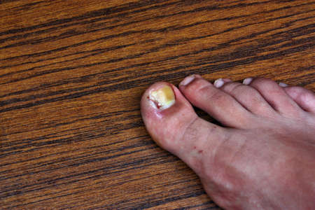 Swollen ingrown toe