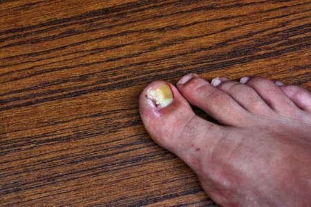 scab: Swollen ingrown toe