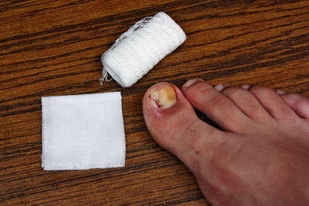 pus: Treatment after the removal of ingrown toenail
