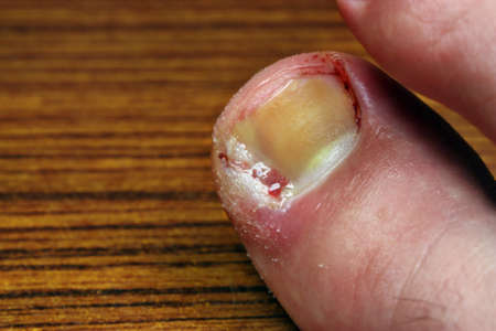 pus: Ingrown toenail