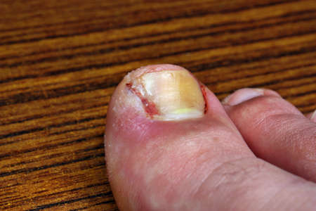 pus: Un'unghia incarnita dopo l'intervento chirurgico
