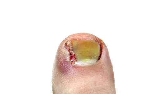 pedicure: Ingrown toenail