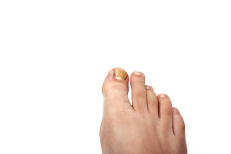 Removed ingrowing toe nail photo