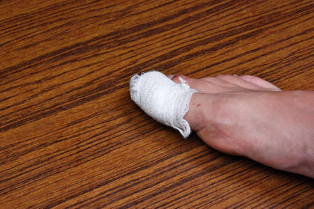 scab:  Ingrown toenail disease blood wound infection bacteria  finger  skin scab pus  toe liquid whitlow felon treatment swelling on a brown table background