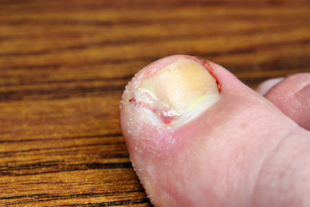 Ingrown toenail disease blood wound infection bacteria  finger  skin scab pus  toe liquid whitlow felon treatment swelling on a brown table background