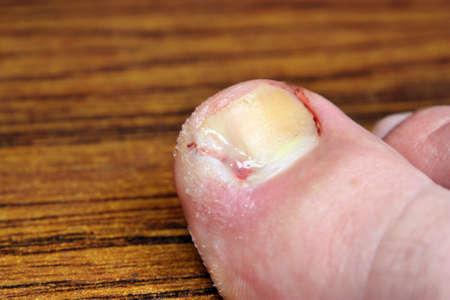 pus: Malattia un'unghia incarnita infezione della ferita di anima ticchiolatura pelle batteri dito pus punta il trattamento criminale whitlow liquido gonfiore su un tavolo sfondo marrone Archivio Fotografico