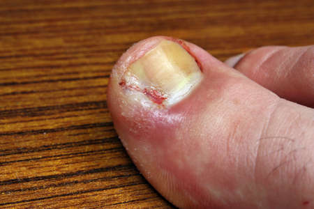 toenail: Ingrown toenail disease blood wound infection bacteria  finger  skin scab pus  toe liquid whitlow felon treatment swelling on a brown table background