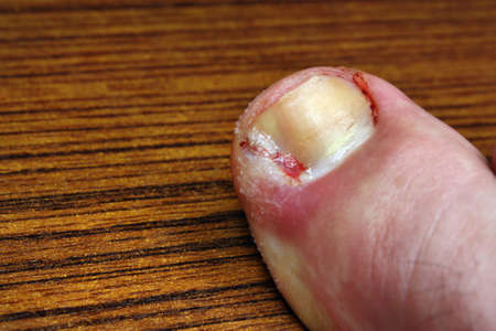 toenail fungus: Ingrown toenail disease blood wound infection bacteria  finger  skin scab pus  toe liquid whitlow felon treatment swelling on a brown table background