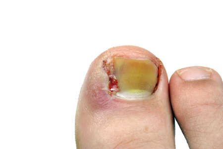 Ingrown toenail disease blood wound infection bacteria  finger  skin scab pus toe liquid whitlow felon treatment swelling on a white background Stock Photo