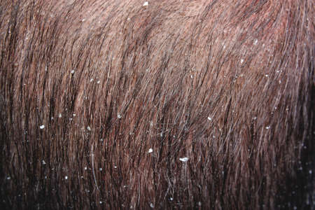 Caucasian young man dandruff in the hair photo