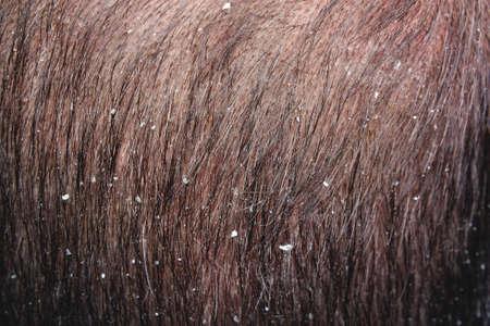 Caucasian young man dandruff in the hair