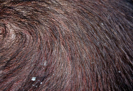 Dandruff in the hair of a man photo