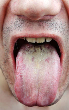 Disease  infection tongue, throat a man