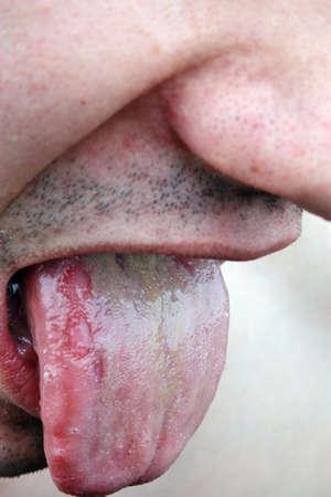 bacterial infection: Infezione batterica lingua malattia in un giovane uomo Archivio Fotografico