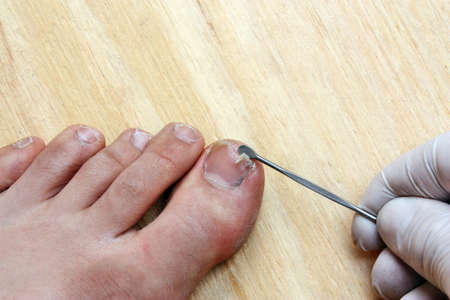 Treatment with a doctor surgeon broken off at the toe toenail photo