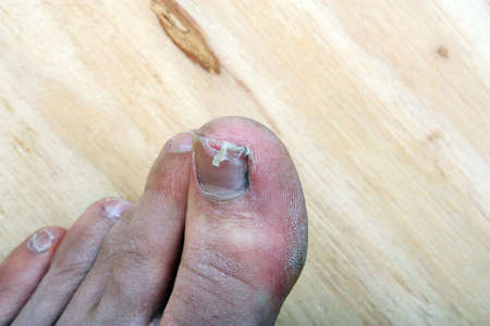 Broken fingernail  toenail legs man photo