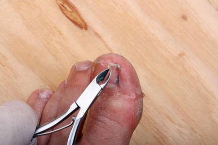 Surgery on a broken toe nail a man photo