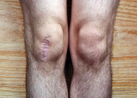 flesh surgery: The scar on his knee in the leg after surgery in hospital Stock Photo