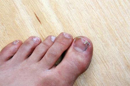 Injury accident broken toenail man photo