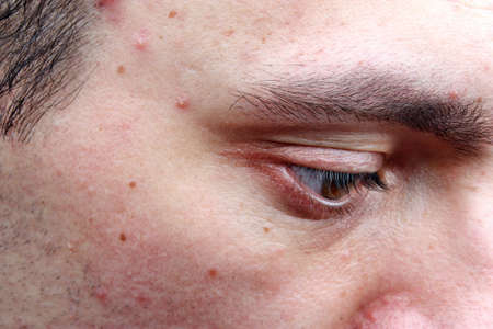 anxious face: Dermatological disease acne pimples on the face of a man Stock Photo