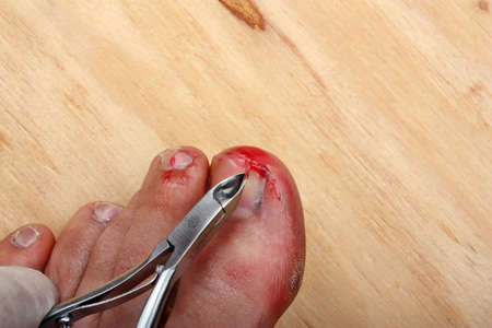 Surgery on a broken bleeding toe nail a man photo