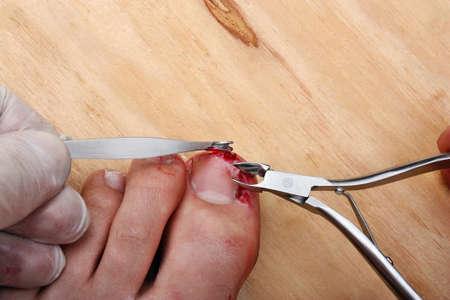 Surgery bleeding broken fingernail leg photo