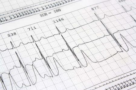 tachycardia: Electrocardiograma de fondo del coraz�n del ritmo Foto de archivo