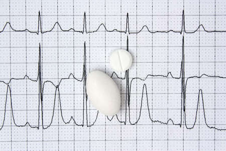 pulsating: Pills on a background of electrocardiogram ECG cardiology disease