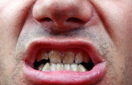 dientes sucios: Dientes enfermos del paciente. El sarro y la caries dental