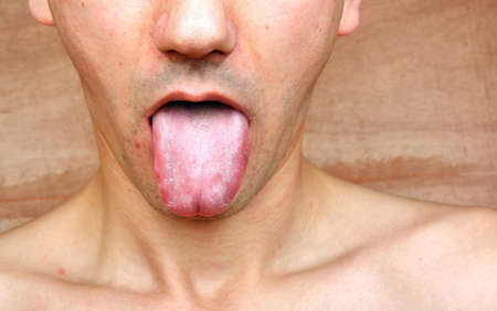 man mouth: Disease infection tongue, throat a man Stock Photo