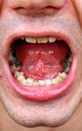 Outbreaks of tartar and amalgam fillings