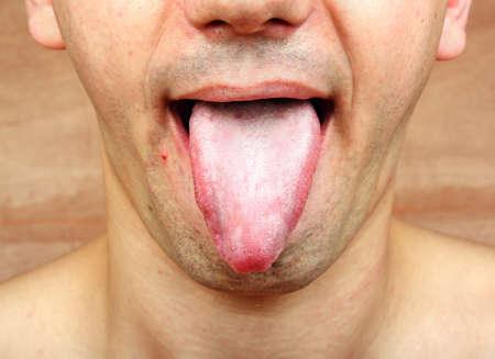 Maladie de la langue infection candida albicans Banque d'images