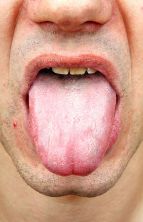 malaise: Bacterial infection disease tongue in a  man