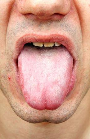 bacterial infection: Lengua bacteriana enfermedad infecci�n en un hombre Foto de archivo