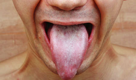 Infection tongue disease candida albicans Stock Photo