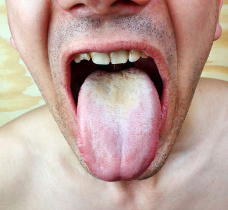 Infection tongue disease candida albicans photo