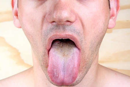 syphilis: Bacterial infection disease tongue in a  man