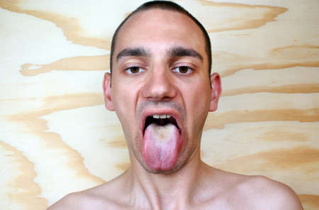 ailment: Disease infection tongue, throat a man Stock Photo