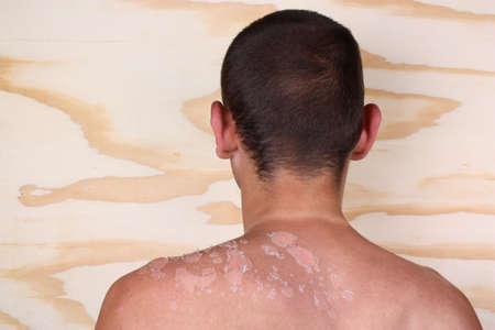 sunburn: Sunburn back from a man and peeling skin