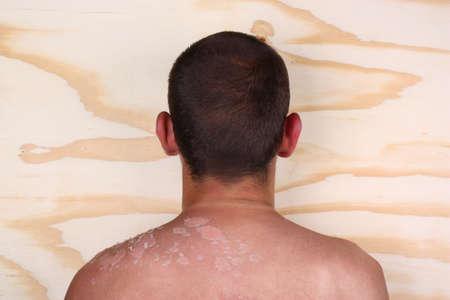 sunburned: Sunburned peeling on back body a man Stock Photo