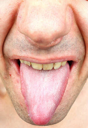 bacterial infection: Bacterial infection disease tongue in a  man