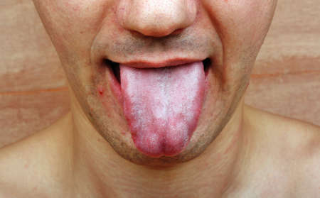 syphilis: Disease  infection tongue, throat a man